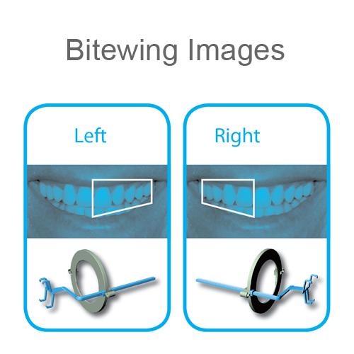 Denbite Digital Intra Oral Sensor Holder Size 1 Bitewing