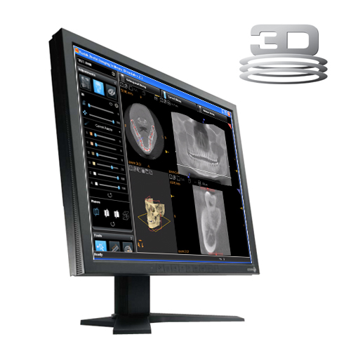 Carestream 3D CBCT Viewing and Planning Software v3.1